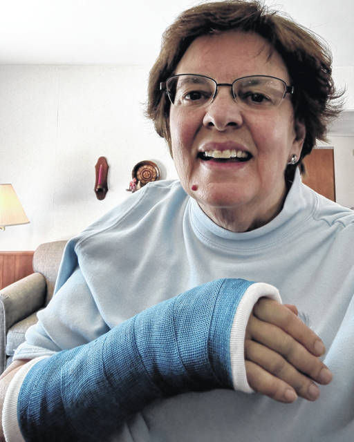 Alberta Stojkovic shows the cast on her right arm. She wrote about her experience breaking her right wrist using her left hand.