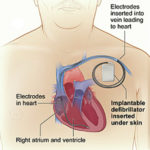 Getting to the heart of implantable devices
