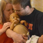 Infant undergoes liver transplant