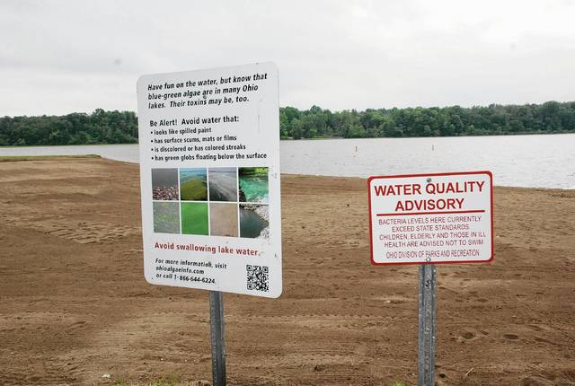 "Any exposure to the water in Kiser Lake is dangerous due to high algal toxin levels, according to the Ohio Department of Health's BeachGuard service, which elevated its warning to a ""danger"" level and disclosed the latest data showing high levels of the toxin."