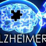 Feb. 24 program in Mansfield aimed at those affected by Alzheimer's