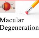 Be aware of age-related macular degeneration