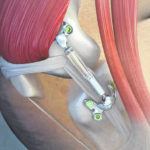 OSU first to implant device for knee osteoarthritis