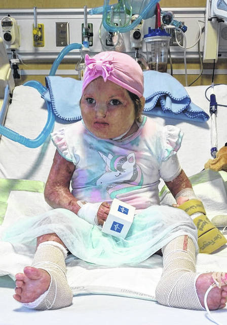 Five-year-old Clarissa Marr, pictured, who was severely burned when her Clifton, WV home caught fire Sept. 24, 2020, will return to the family's new home in Meigs County on Wednesday. She has spent the past six months in Nationwide Children's Hospital.