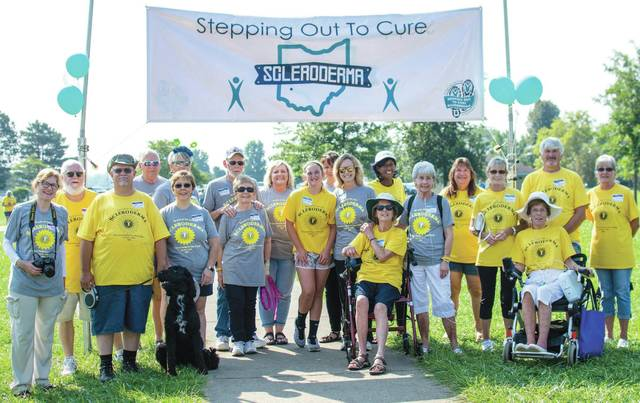 Submitted photo The Greater Dayton Stepping Out to Cure Scleroderma is slated for Saturday, Aug. 3 at Fairborn Community Park, 691 E. Dayton-Yellow Springs Road. event will feature a scenic stroll through Community Park, either 3/4 mile, 1 1/2 mile and 5K distances for both runners and walkers. The event will also include a DJ, face painting, crafts and other activities for children, as well as a 50/50 drawing and raffles with some prizes valued at more than $100.