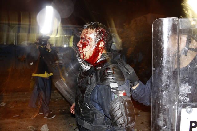 This Oct. 2012 handout photo provided by Gustavo Aguado shows a bloodied federal police officer injured during an eviction of students, in Tiripetio, Mexico. This photo was not taken in confrontations with migrants making their way in a caravan from Central America to the U.S., despite a post circulating on social media. (Photo by Gustavo Aguado via AP)